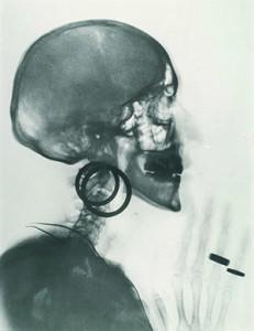 Radiografische fotografie. Meret Oppenheim, Röntgenaufnahme des Schädels M. O. (1964). Particuliere collectie.